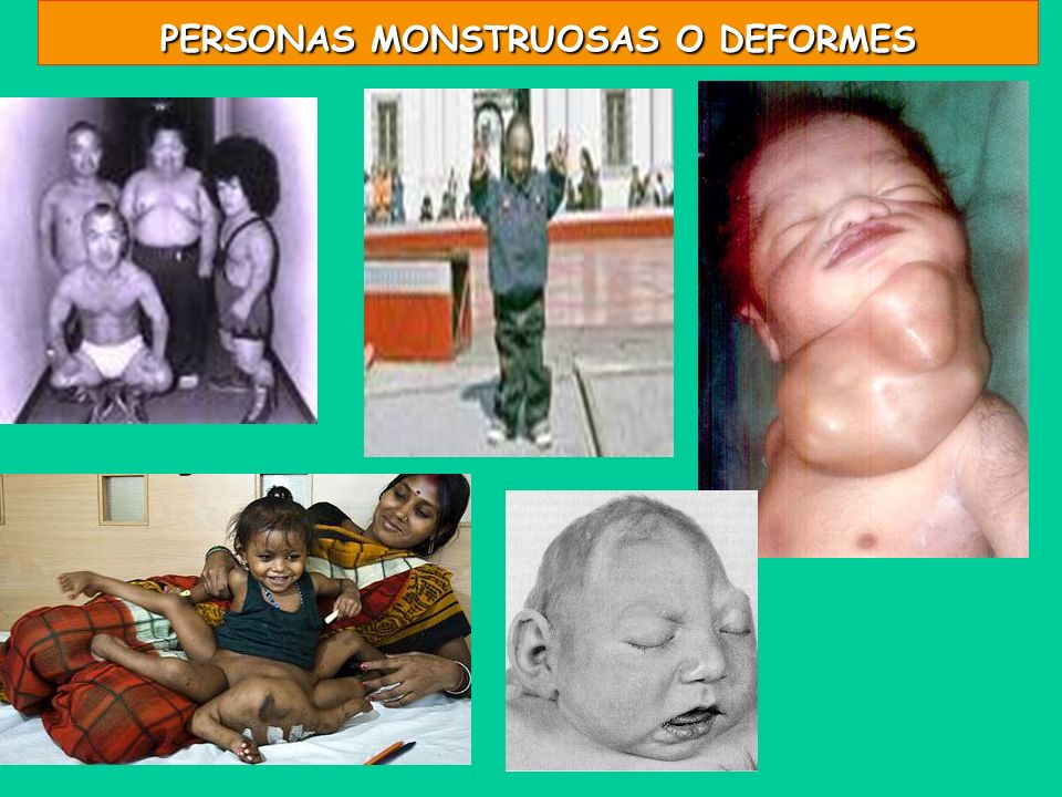PERSONAS MONSTRUOSAS O DEFORMES