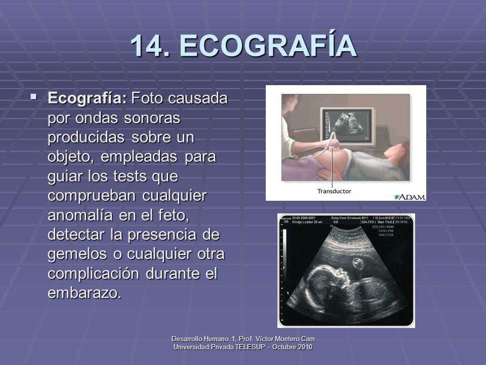 14. ECOGRAFÍA
