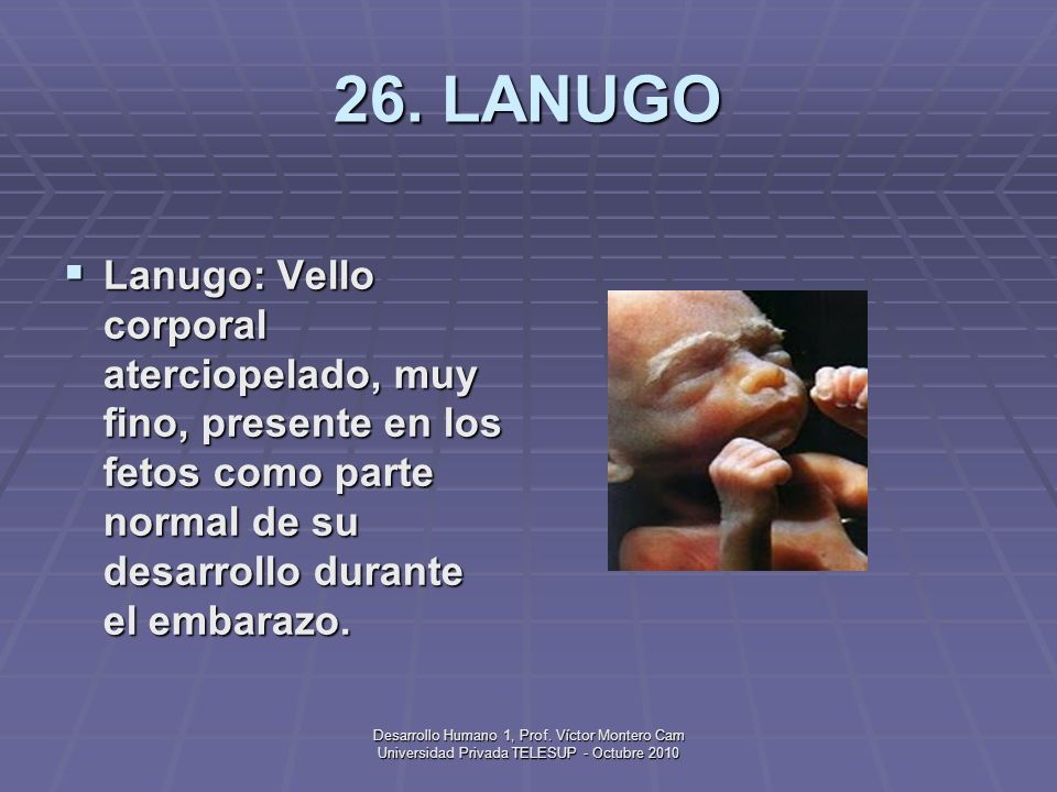 26. LANUGOLanugo: Vello corporal aterciopelado, muy fino, presente en los fetos como parte normal de su desarrollo durante el embarazo.