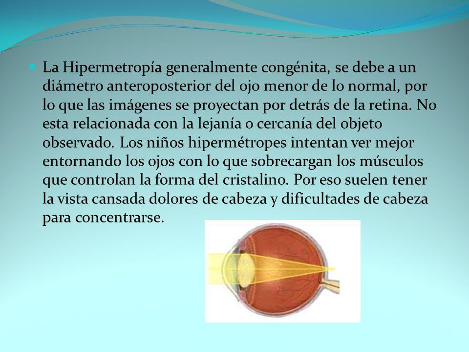 La Hipermetropía generalmente congénita, se debe a un diámetro anteroposterior del ojo menor de lo normal, por lo que las imágenes se proyectan por detrás de la retina.