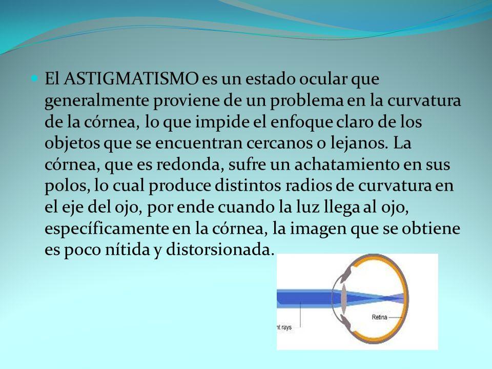 El ASTIGMATISMO es un estado ocular que generalmente proviene de un problema en la curvatura de la córnea, lo que impide el enfoque claro de los objetos que se encuentran cercanos o lejanos.