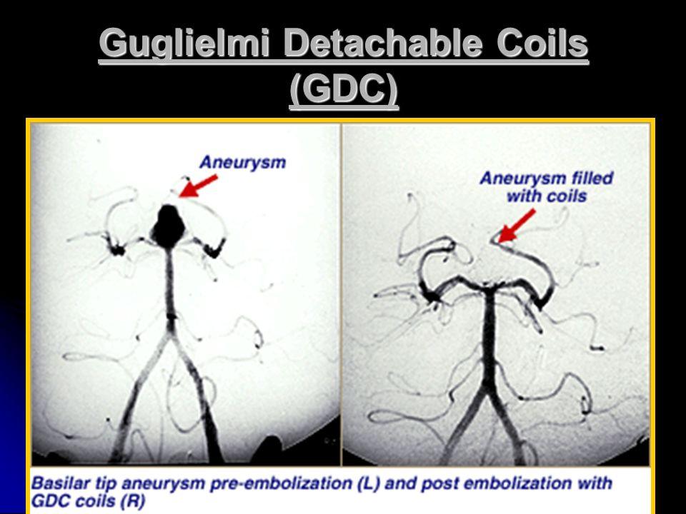 Guglielmi Detachable Coils (GDC)