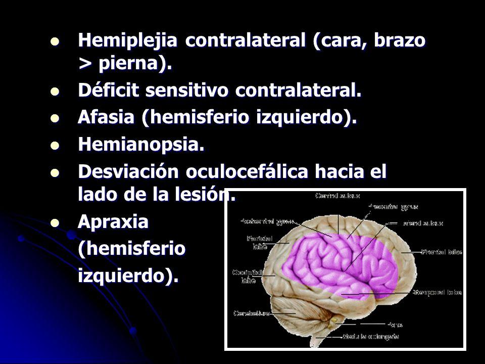 Hemiplejia contralateral (cara, brazo > pierna).