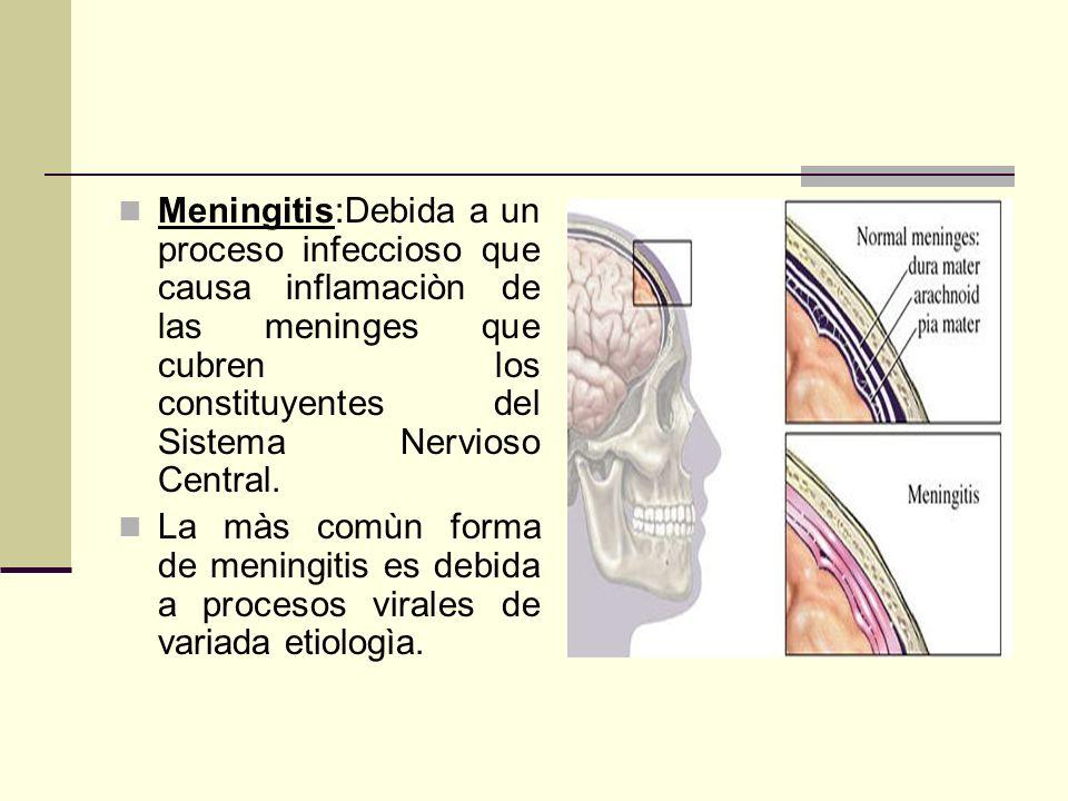 Meningitis:Debida a un proceso infeccioso que causa inflamaciòn de las meninges que cubren los constituyentes del Sistema Nervioso Central.