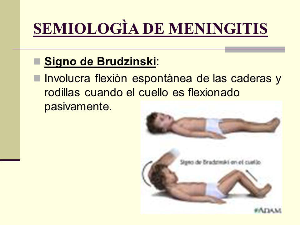 SEMIOLOGÌA DE MENINGITIS