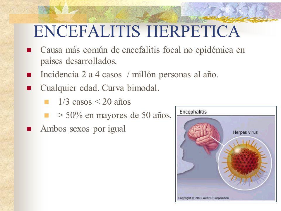 ENCEFALITIS HERPETICA