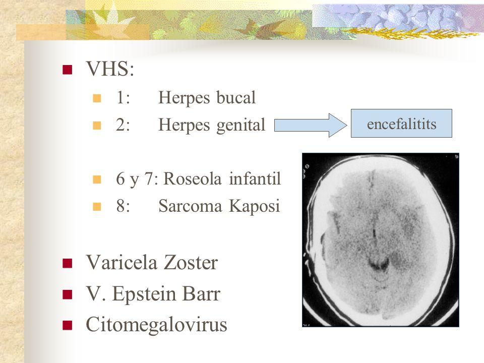 VHS: Varicela Zoster V. Epstein Barr Citomegalovirus 1: Herpes bucal