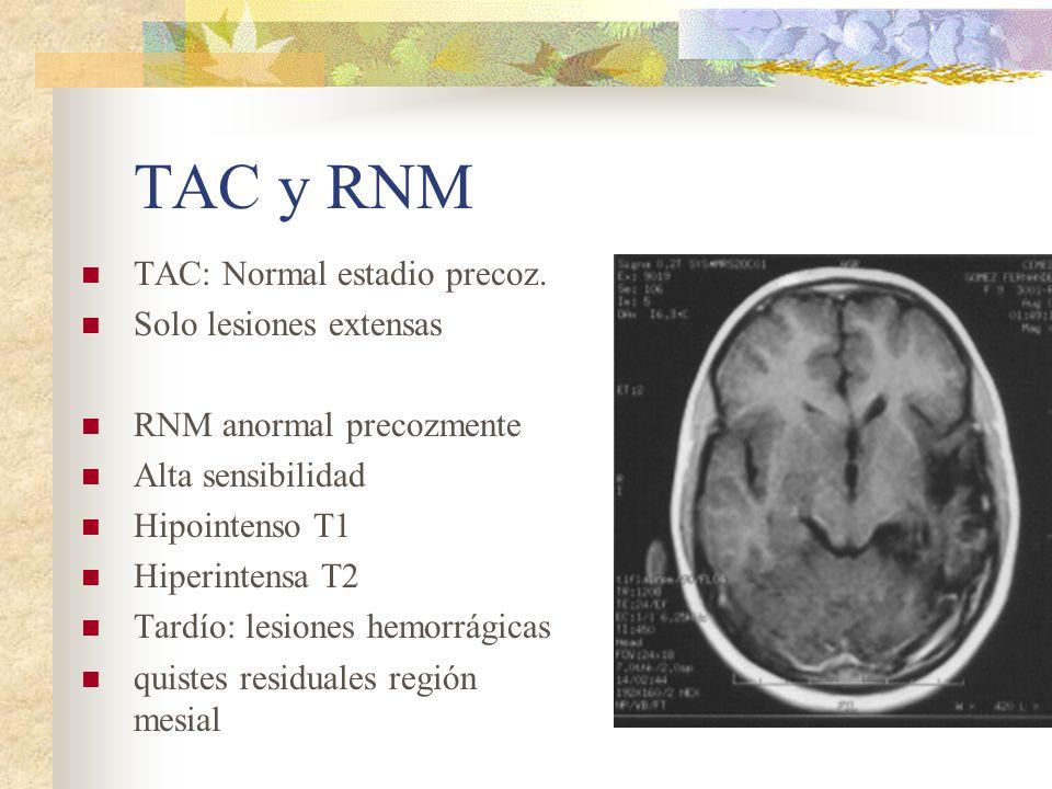 TAC y RNM TAC: Normal estadio precoz. Solo lesiones extensas