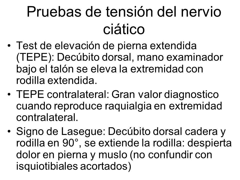 Pruebas de tensión del nervio ciático