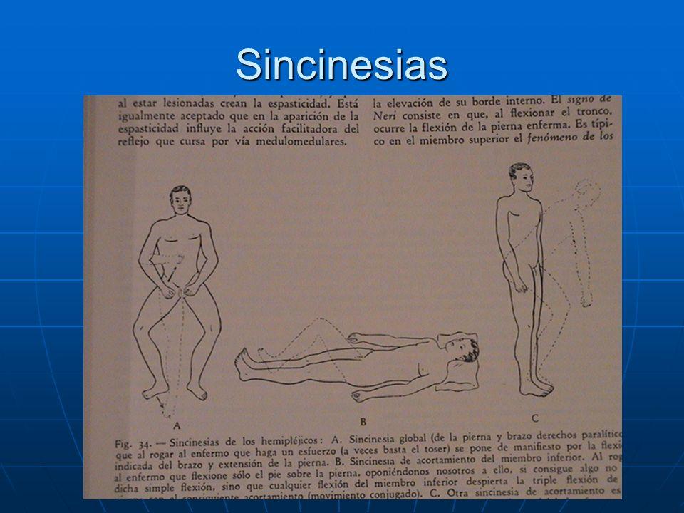 Sincinesias