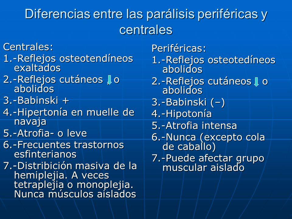 Diferencias entre las parálisis periféricas y centrales