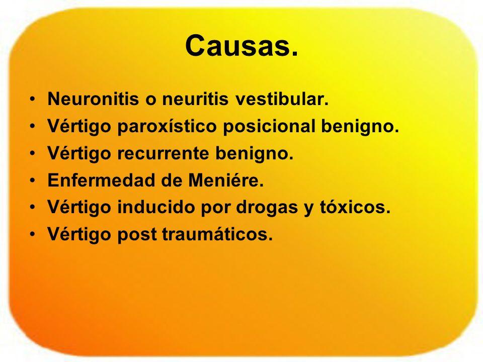 Causas. Neuronitis o neuritis vestibular.