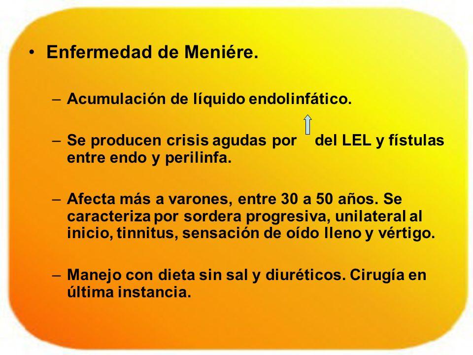 Enfermedad de Meniére. Acumulación de líquido endolinfático.
