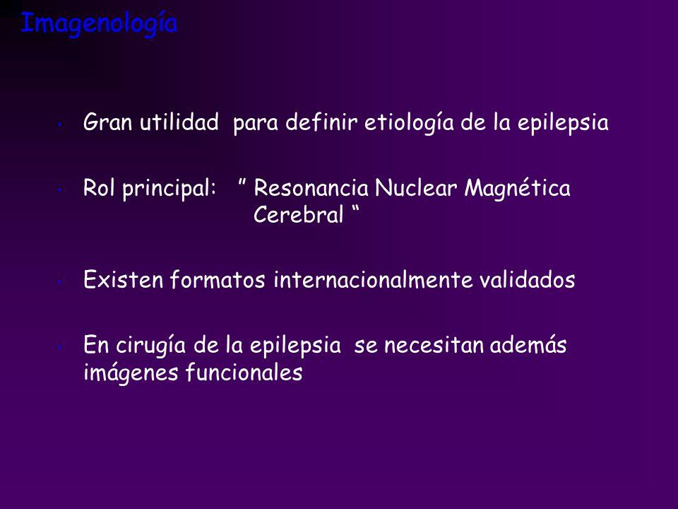 Imagenología Gran utilidad para definir etiología de la epilepsia
