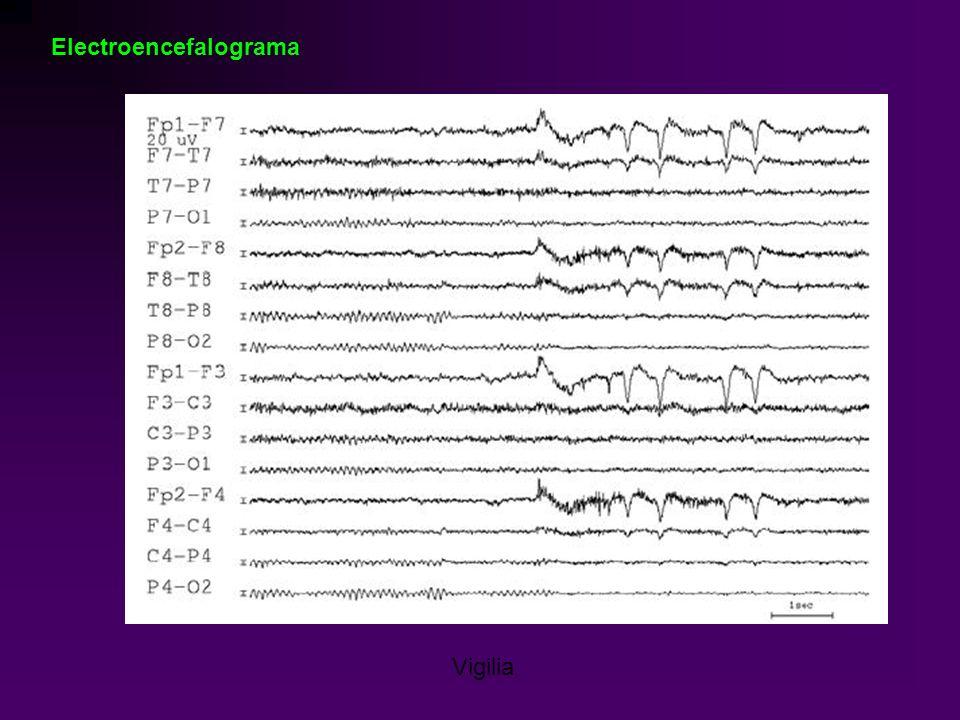 Electroencefalograma