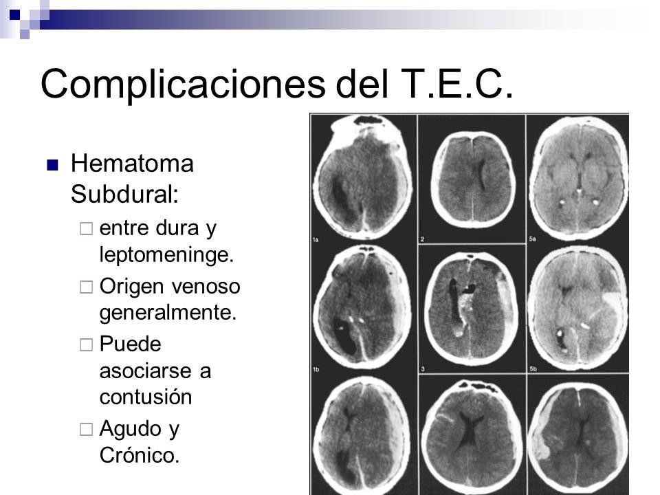 Complicaciones del T.E.C.