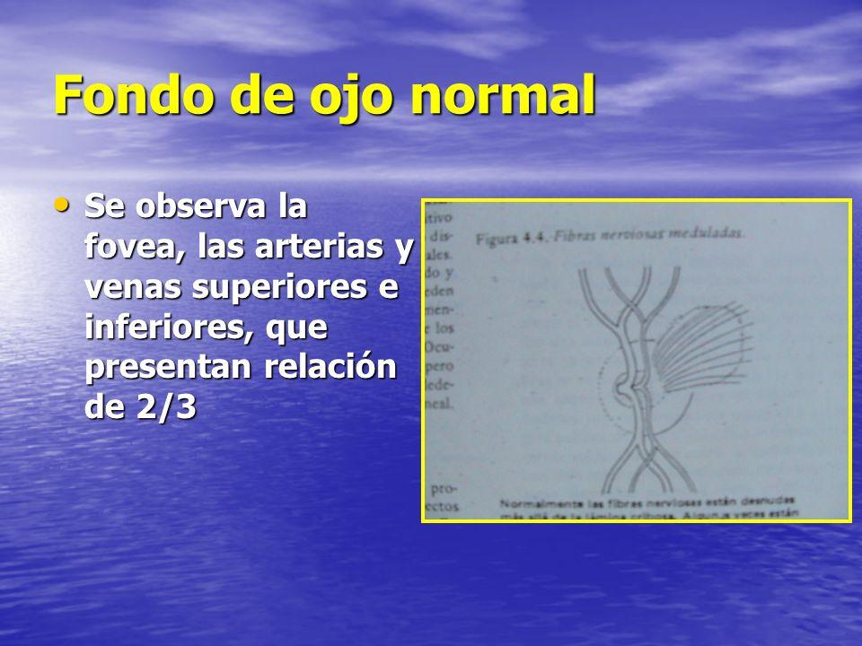 Fondo de ojo normal Se observa la fovea, las arterias y venas superiores e inferiores, que presentan relación de 2/3.