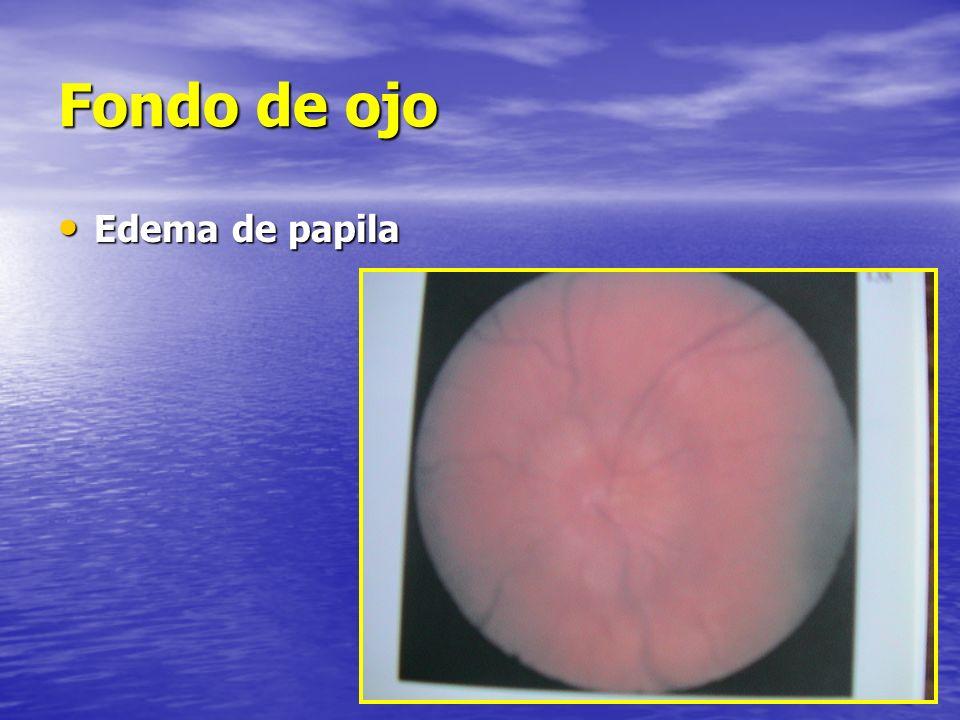 Fondo de ojo Edema de papila