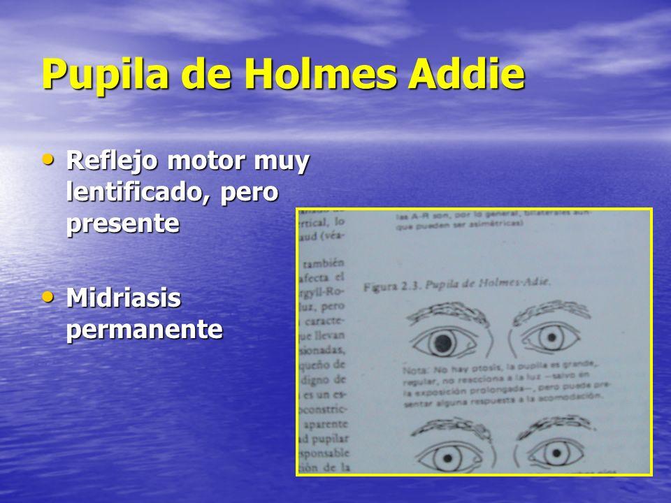 Pupila de Holmes Addie Reflejo motor muy lentificado, pero presente