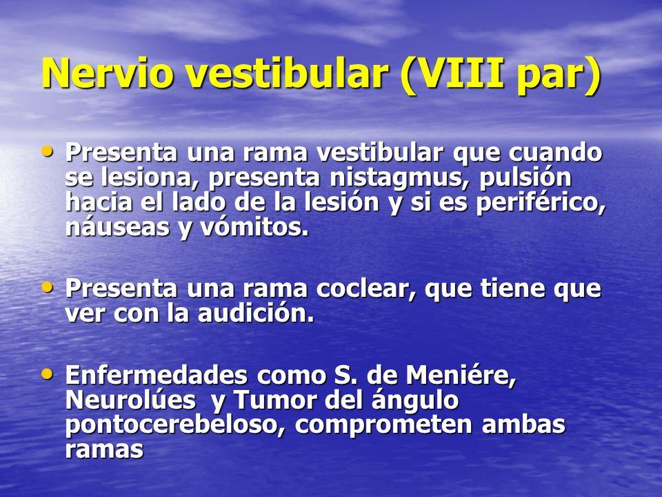 Nervio vestibular (VIII par)