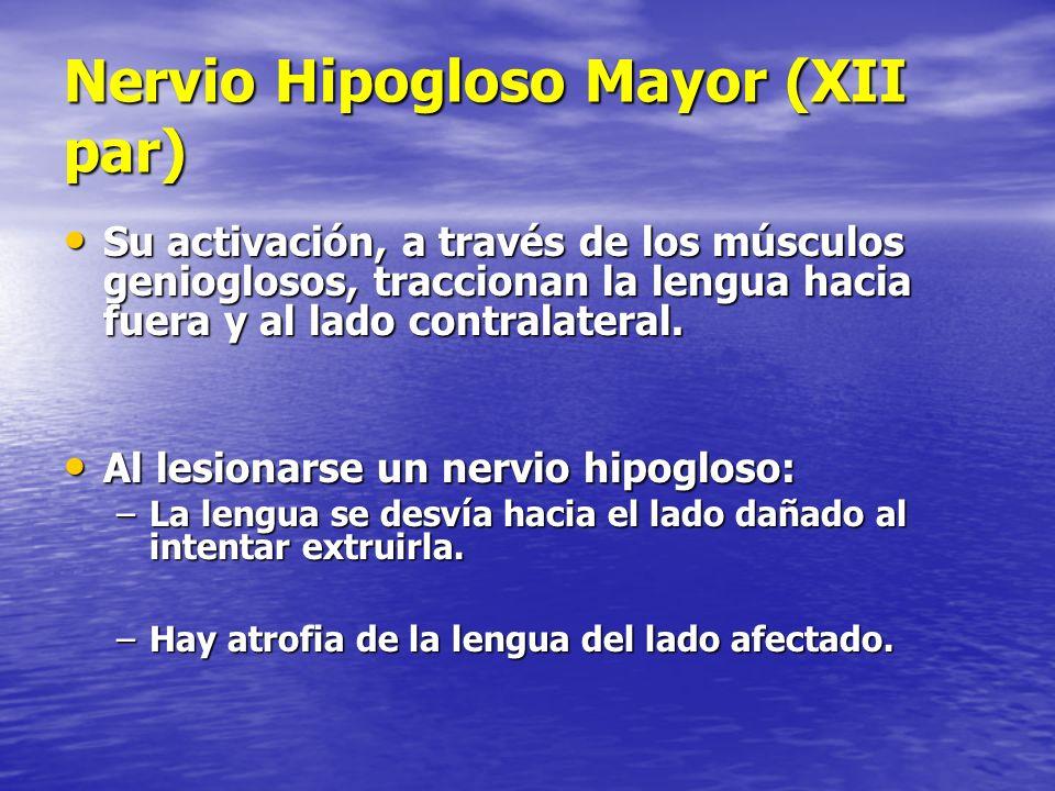 Nervio Hipogloso Mayor (XII par)