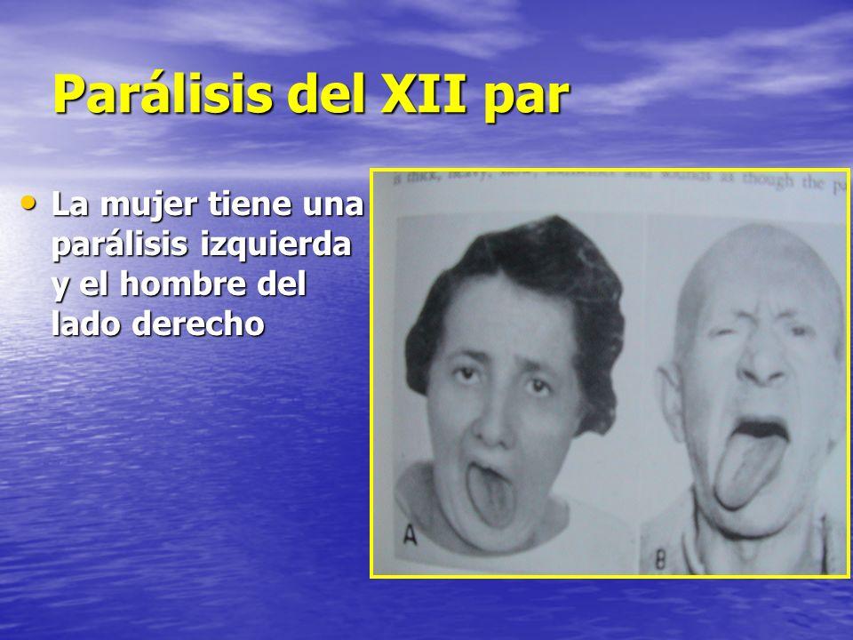Parálisis del XII par La mujer tiene una parálisis izquierda y el hombre del lado derecho