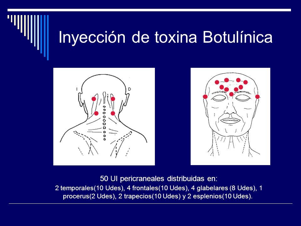Inyección de toxina Botulínica
