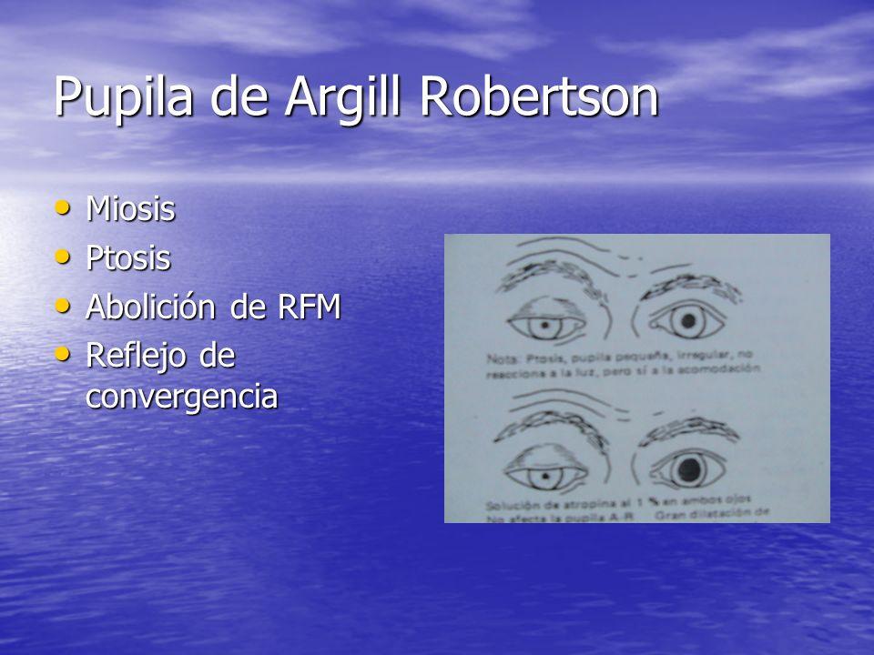 Pupila de Argill Robertson