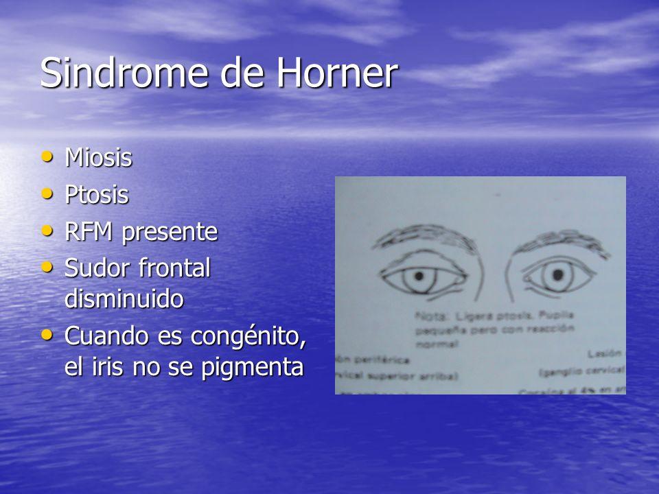 Sindrome de Horner Miosis Ptosis RFM presente Sudor frontal disminuido
