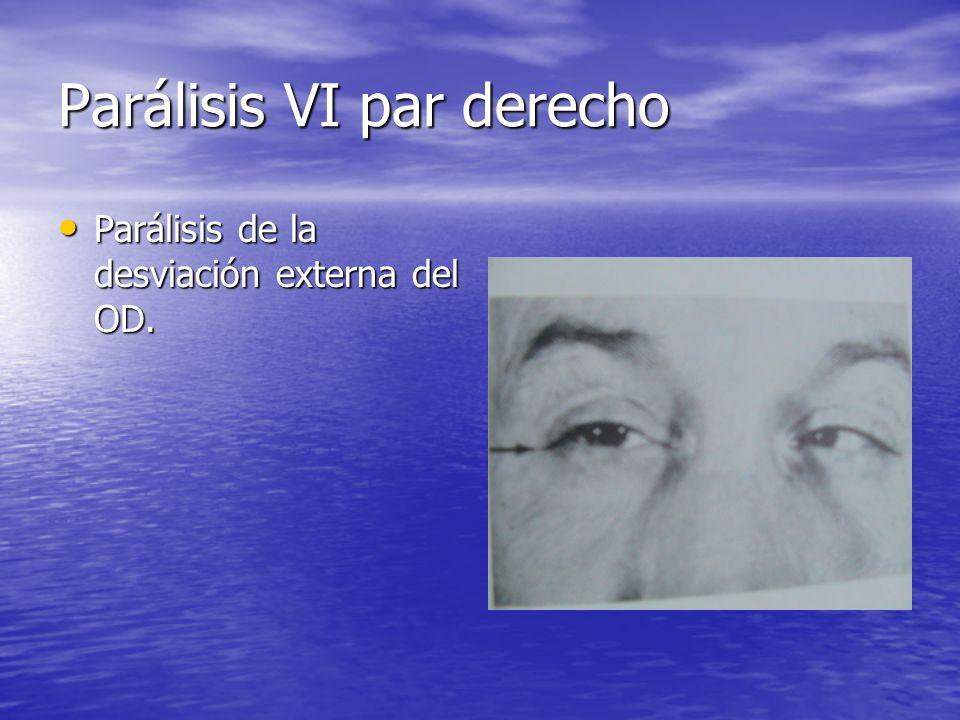 Parálisis VI par derecho