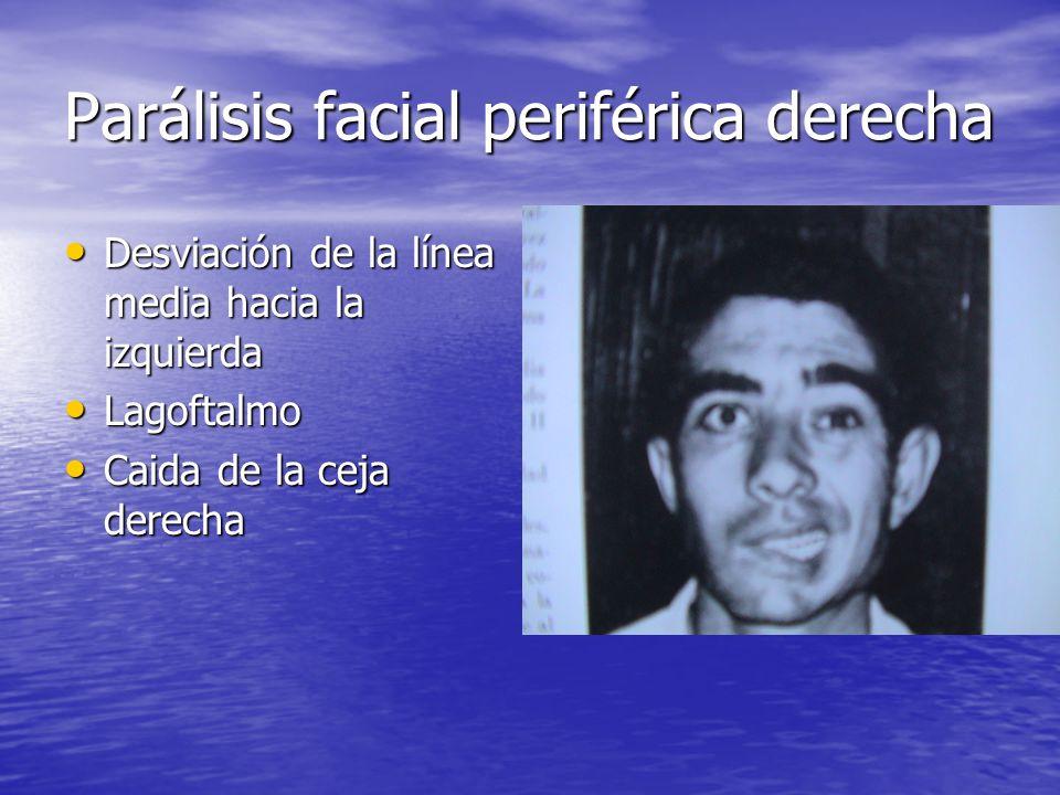 Parálisis facial periférica derecha