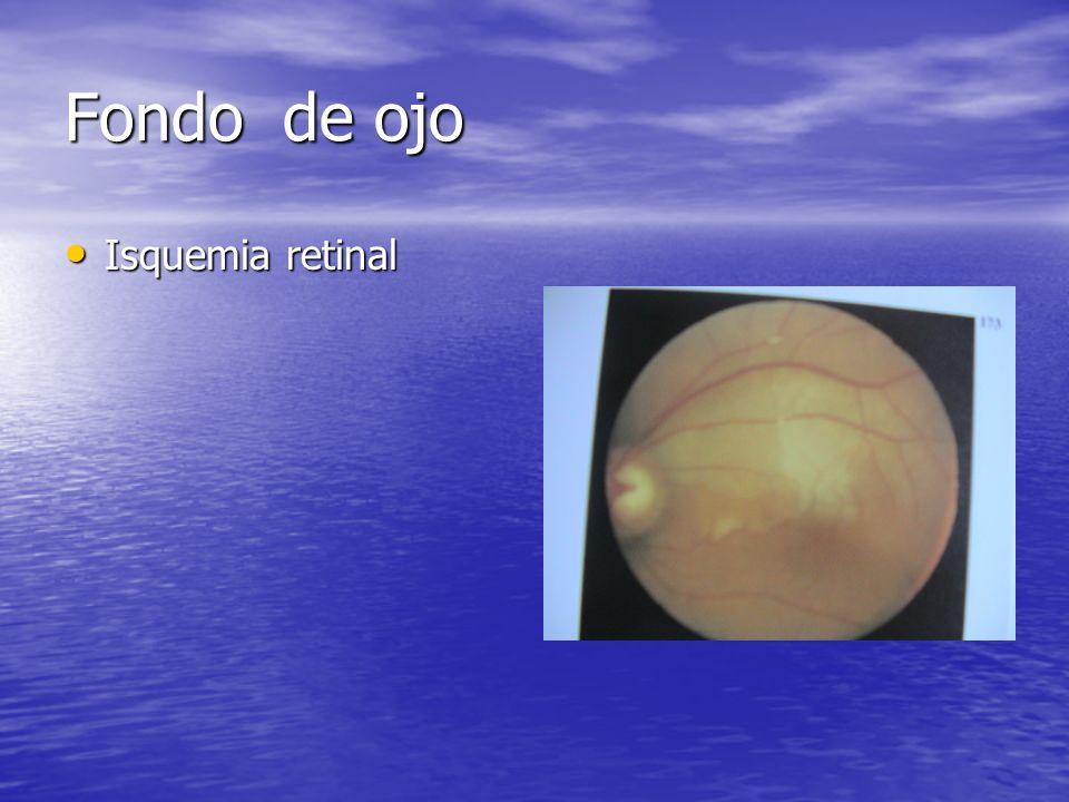 Fondo de ojo Isquemia retinal