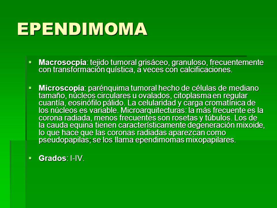 EPENDIMOMA Macrosocpía: tejido tumoral grisáceo, granuloso, frecuentemente con transformación quística, a veces con calcificaciones.