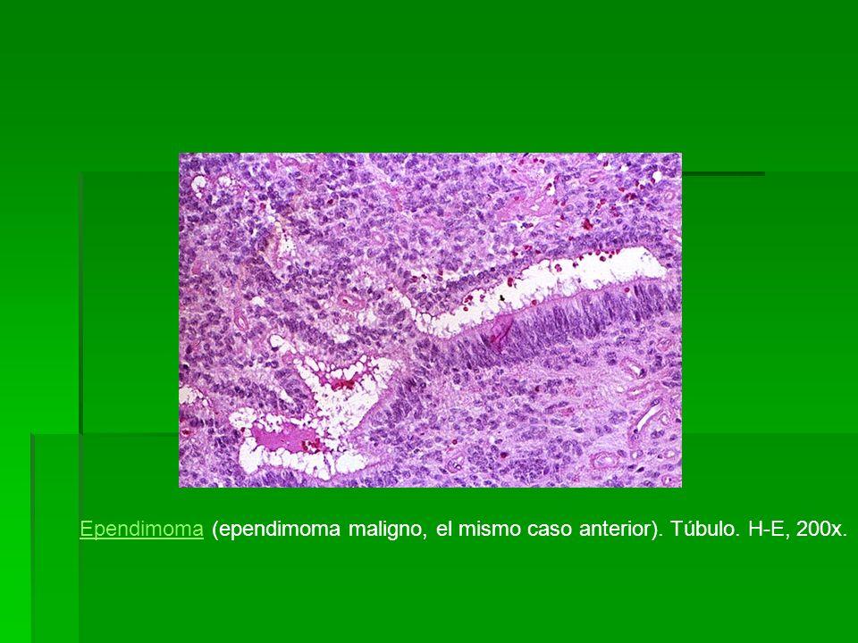 Ependimoma (ependimoma maligno, el mismo caso anterior). Túbulo