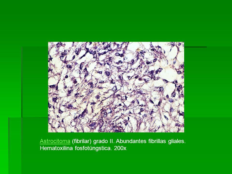Astrocitoma (fibrilar) grado II. Abundantes fibrillas gliales