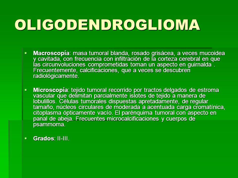 OLIGODENDROGLIOMA
