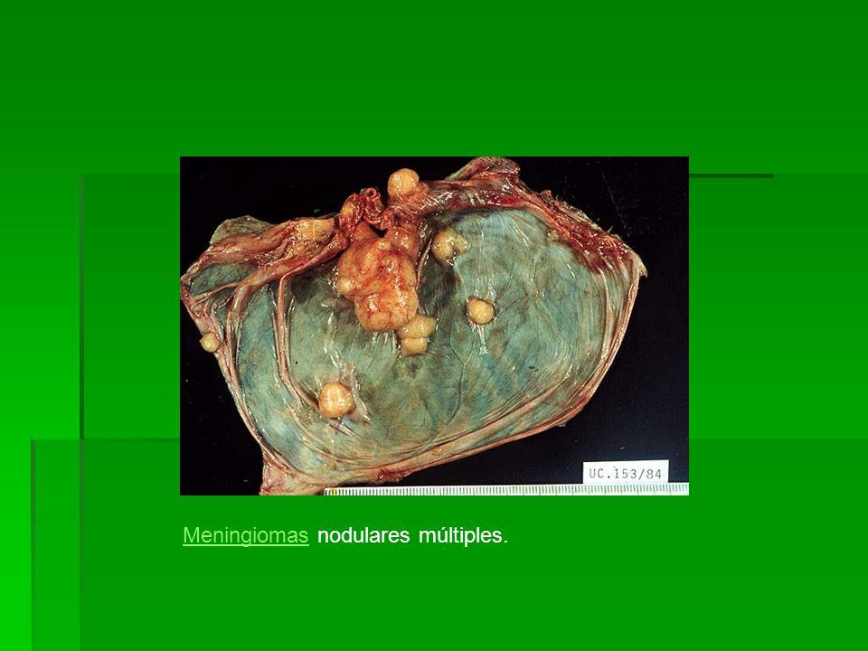 Meningiomas nodulares múltiples.
