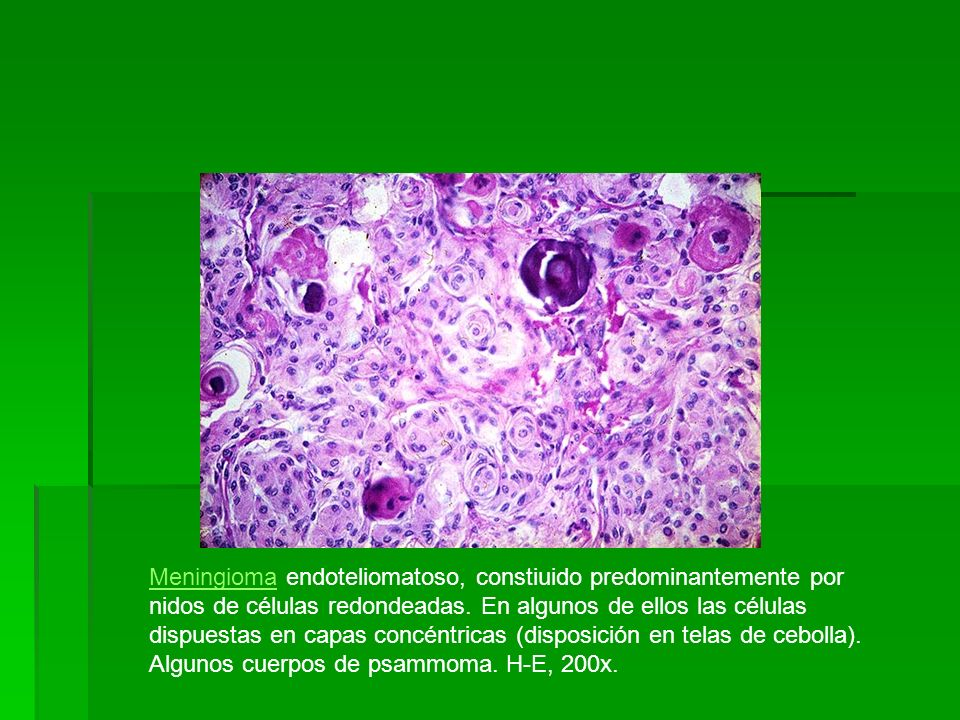 Meningioma endoteliomatoso, constiuido predominantemente por nidos de células redondeadas.