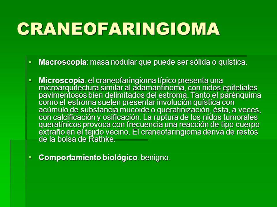 CRANEOFARINGIOMA Macroscopía: masa nodular que puede ser sólida o quística.