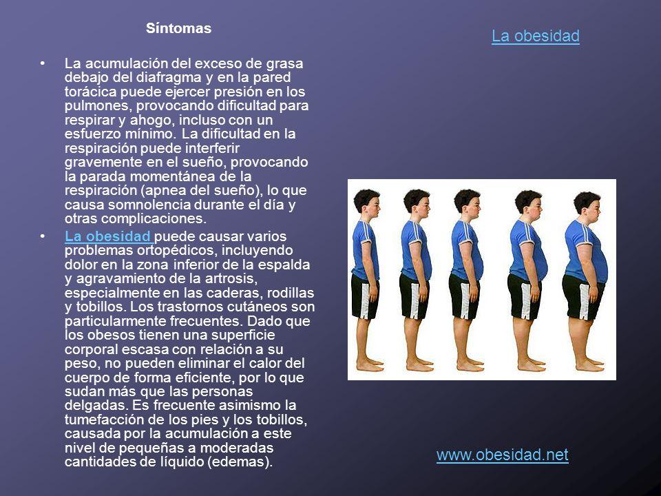 La obesidad www.obesidad.net Síntomas