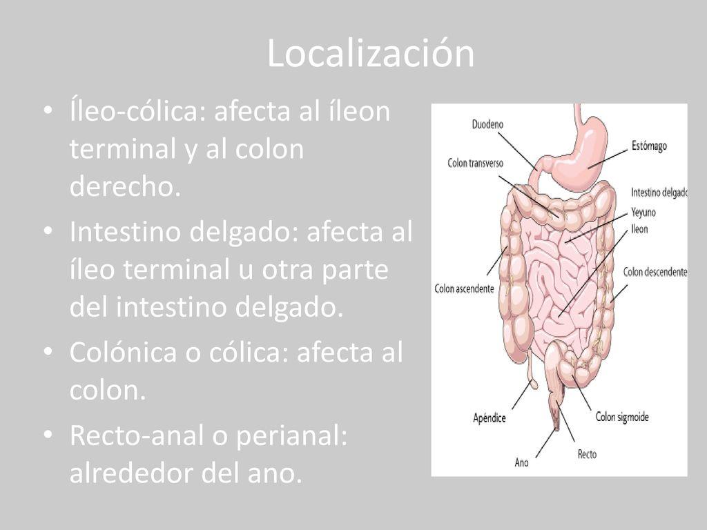 Atractivo Diagrama De íleon Friso - Anatomía de Las Imágenesdel ...