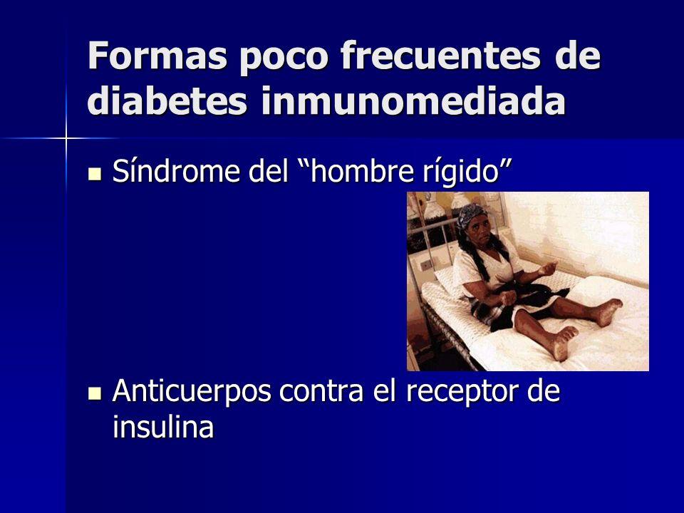 Formas poco frecuentes de diabetes inmunomediada