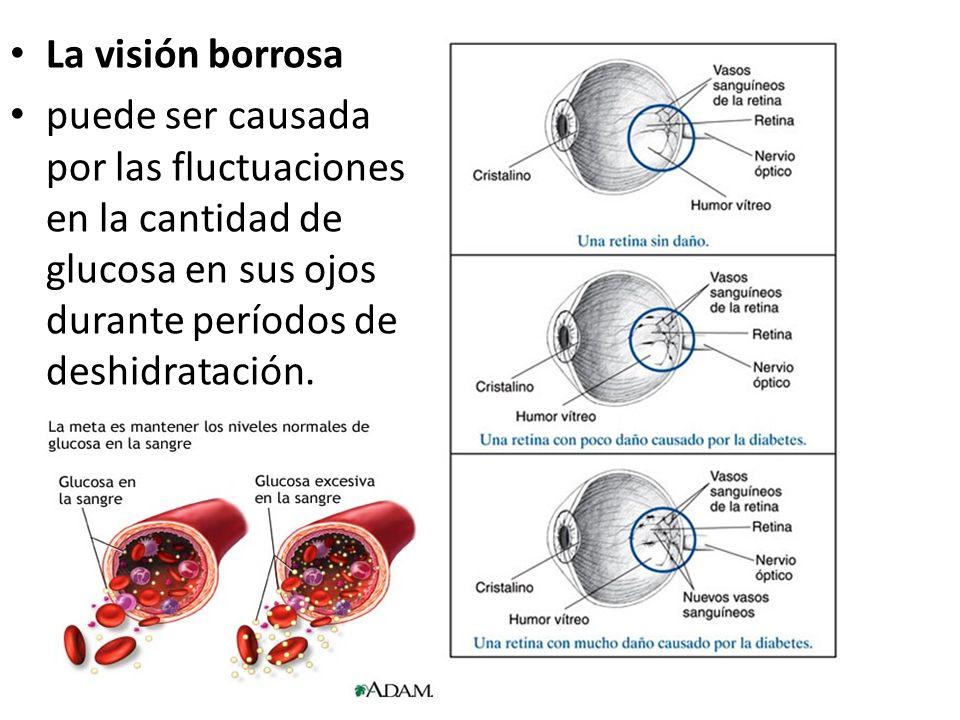 La visión borrosa puede ser causada por las fluctuaciones en la cantidad de glucosa en sus ojos durante períodos de deshidratación.