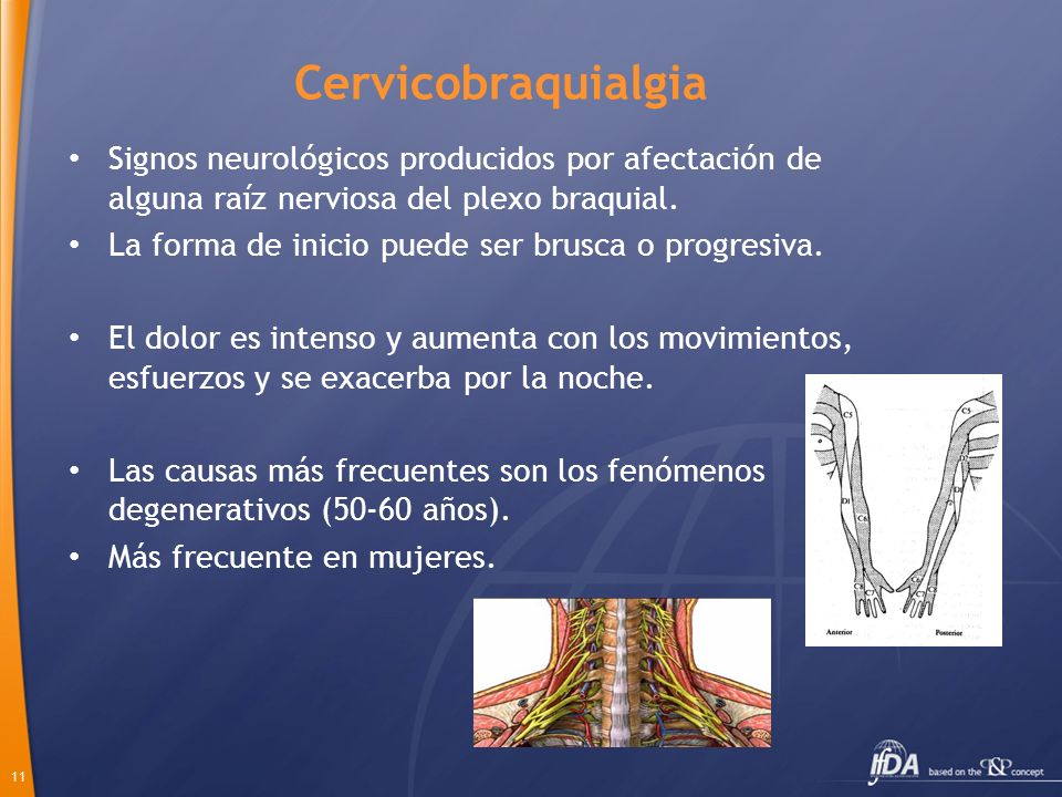 Cervicobraquialgia Signos neurológicos producidos por afectación de alguna raíz nerviosa del plexo braquial.