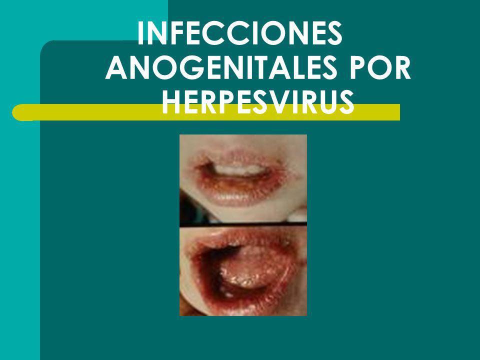 INFECCIONES ANOGENITALES POR HERPESVIRUS