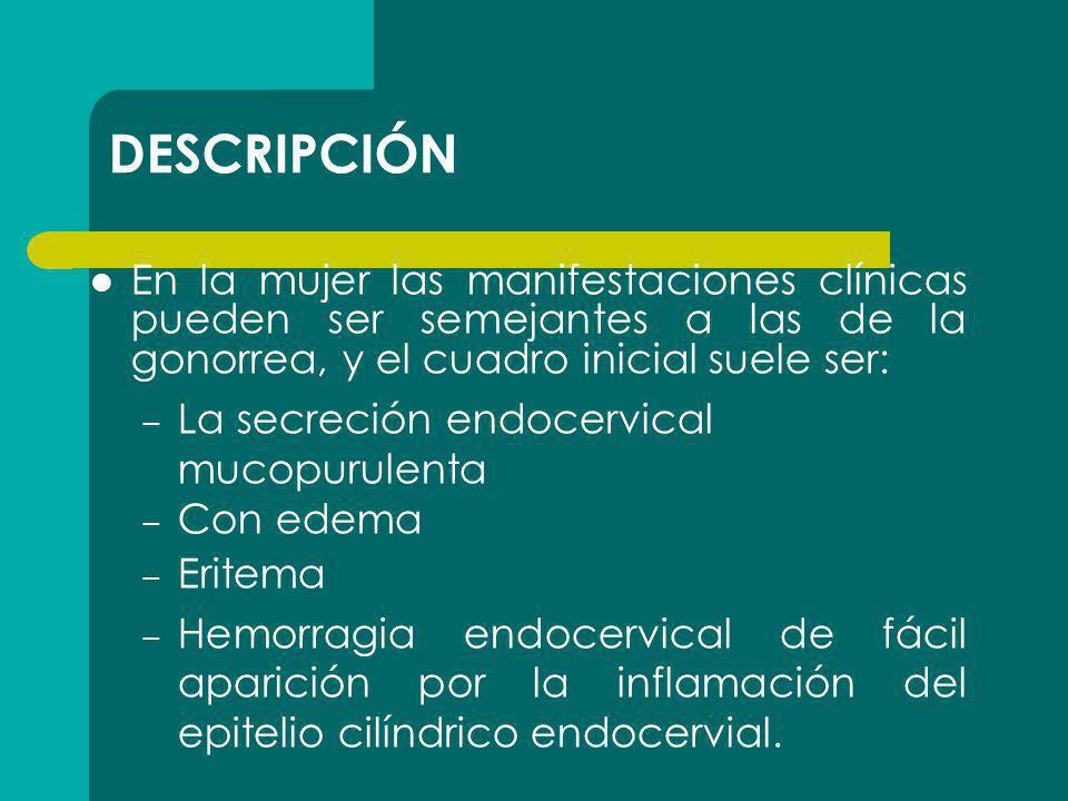 DESCRIPCIÓN En la mujer las manifestaciones clínicas pueden ser semejantes a las de la gonorrea, y el cuadro inicial suele ser: