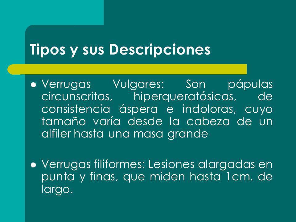 Tipos y sus Descripciones