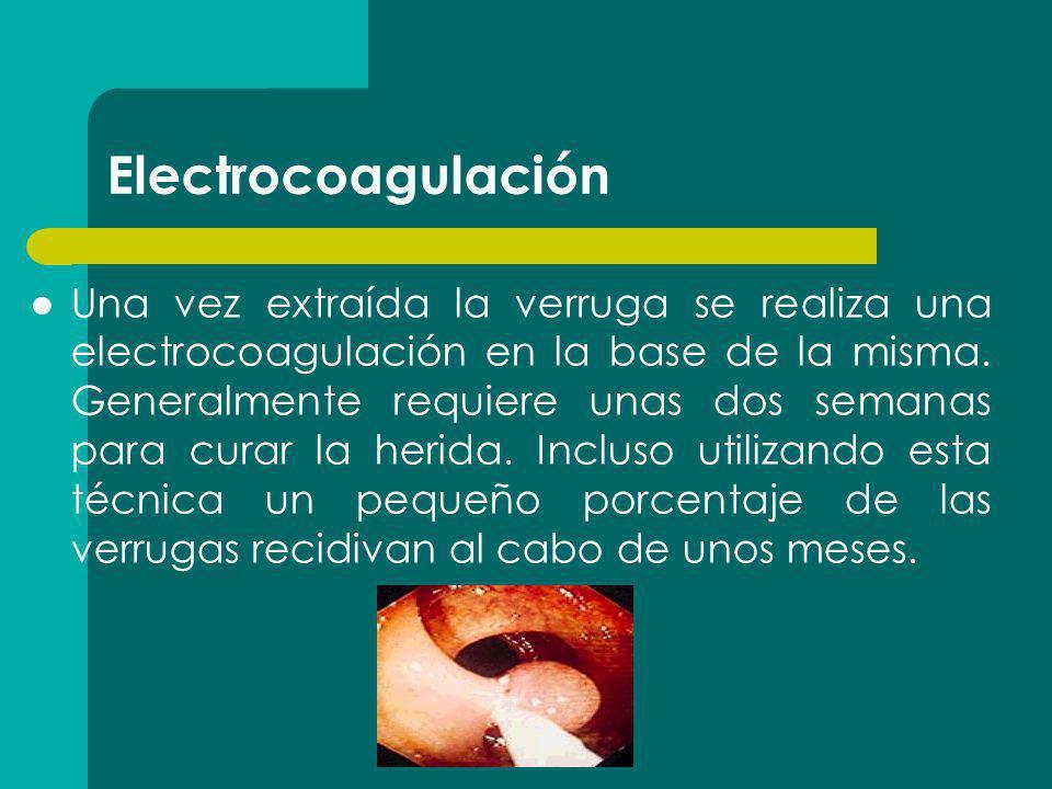 Electrocoagulación
