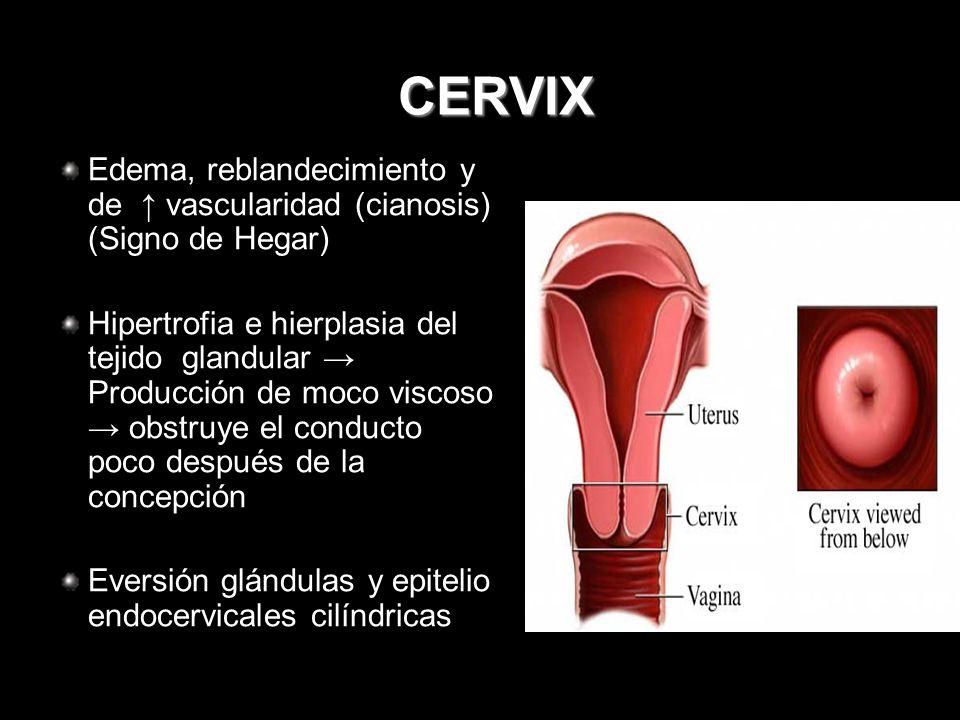 CERVIX Edema, reblandecimiento y de ↑ vascularidad (cianosis) (Signo de Hegar)