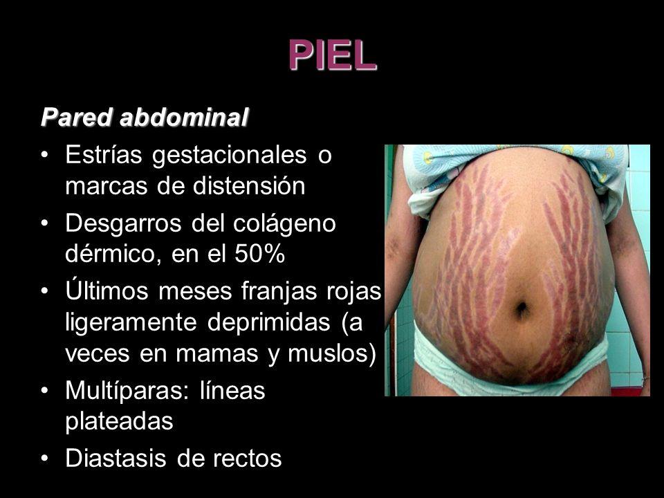 PIEL Pared abdominal Estrías gestacionales o marcas de distensión